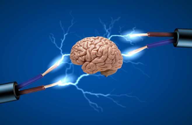 Electric-Brain-Stimulation