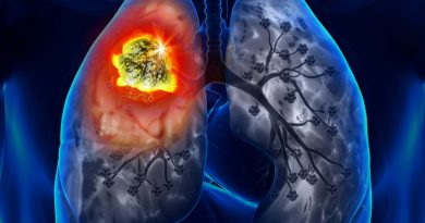 Шестима души се разболяха от туберкулоза в областта само за седмица