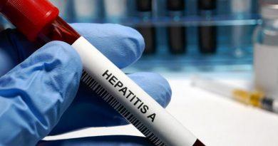 Хепатит А и варицела върлуват в областта