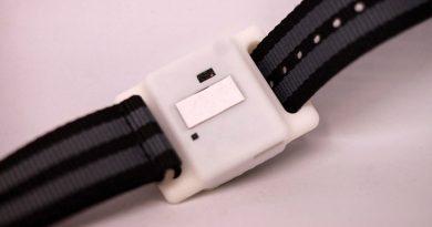 """Устройство с размер на ръчен часовник предупреждава за """"цитокиновата буря"""""""